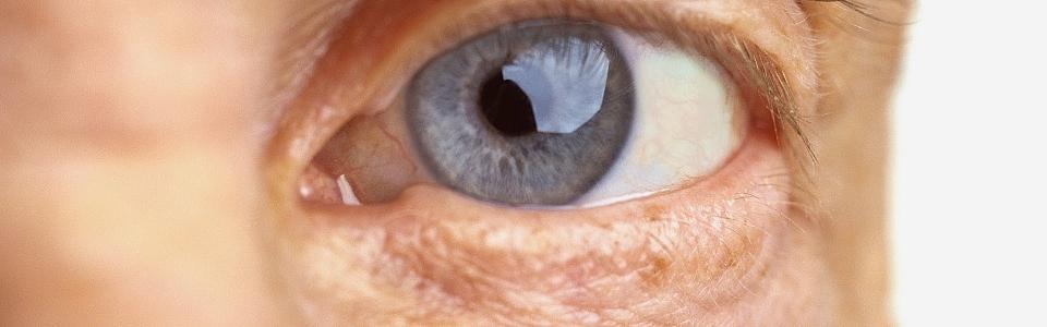 b04f38e07236e Você tem mais de 50 anos e deseja ter uma visão melhor    Dr. Carlos ...
