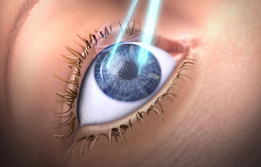 3a37d42342 Cirurgia refrativa com laser personalizada com maior precisão | Dr ...