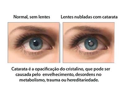 cirurgia catarata curitiba olhos