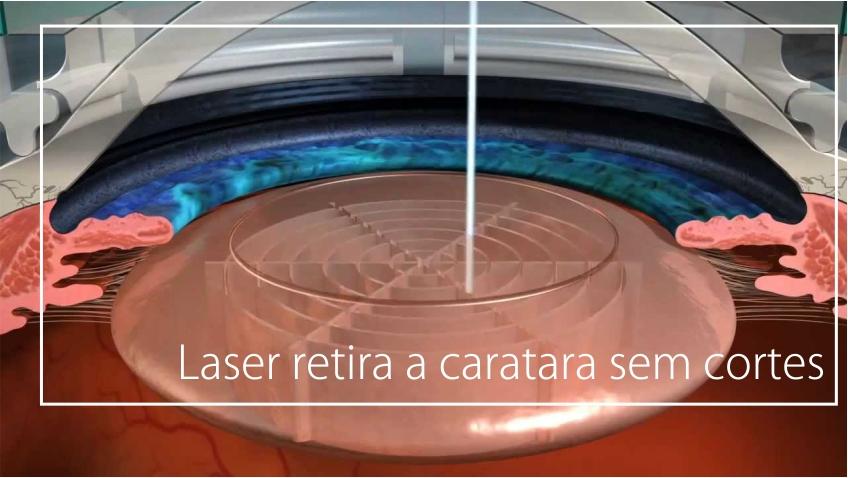cirurgia de catarata curitiba com laser