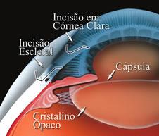 A cirurgia é muito simples. Através de um incisão a catarata é retira e pela mesma incisão a lente intra-ocular é colocada.
