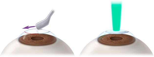cirurgia miopia curitiba PRK
