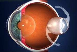 lente intra ocular