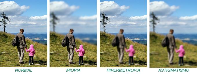 miopia, hipermetropia e astigmatismo