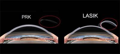 cirurgia refrativa curitiba lasik vs prk