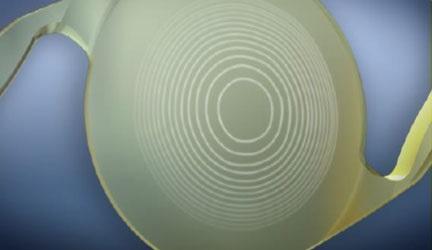 lente trifocal para cirurgia de catarata em curitiba