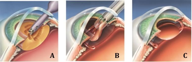 Cirurgia de catarata resumida em 3 passos CONFIGURA