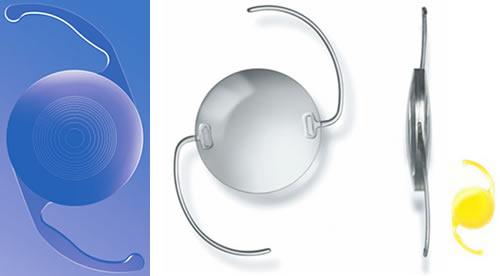 lente intraocular da catarata