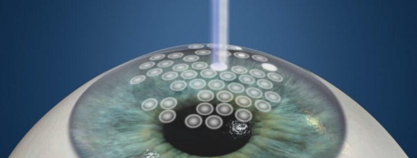 Cirurgia para Miopia a Laser em Curitiba