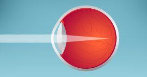 o que é a miopia?