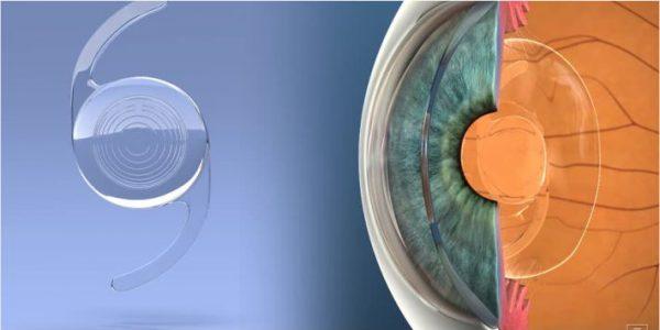 lente intraocular para catarata em curitiba