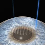 Quais as indicações da cirurgia refrativa a laser em Curitiba
